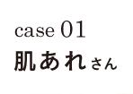 case01 肌あれさん